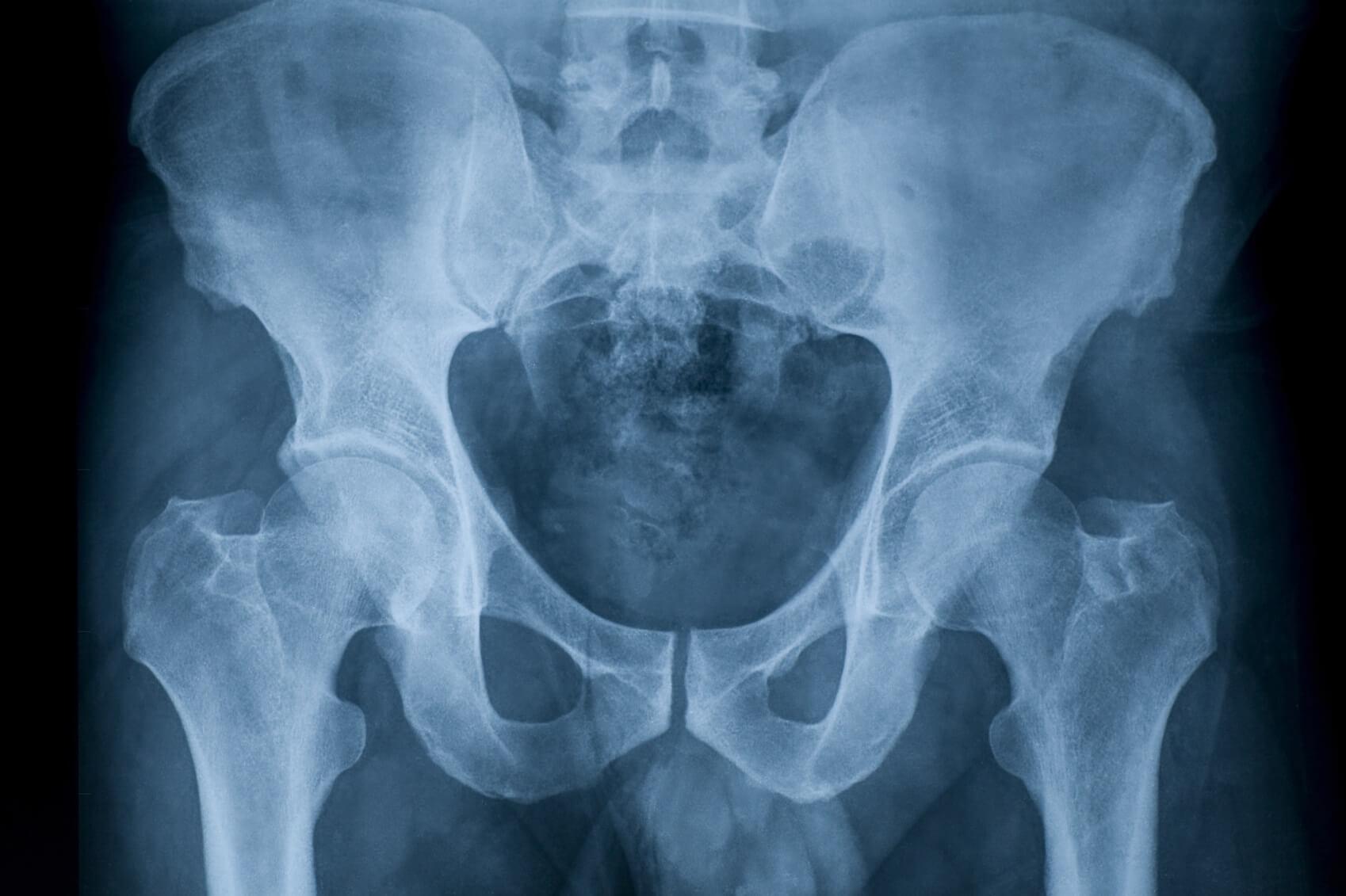 Рентген шейки бедра